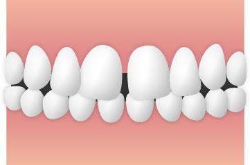 すきっ歯の治療は矯正ばかりではない