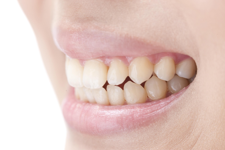 歯茎の再生療法とは